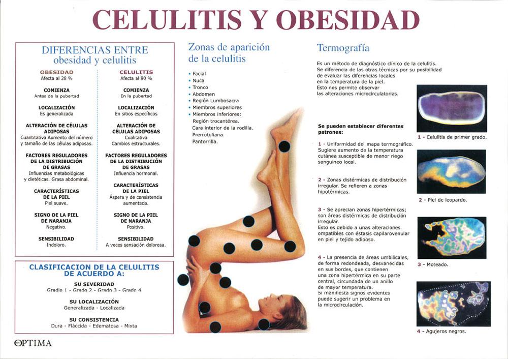 Celulitis y obesidad