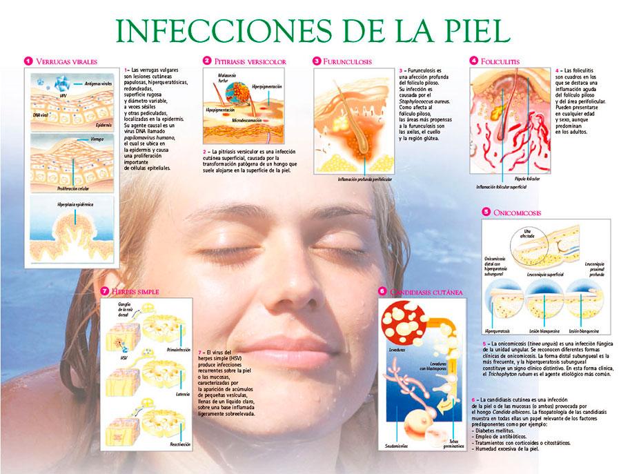 Infecciones de la piel