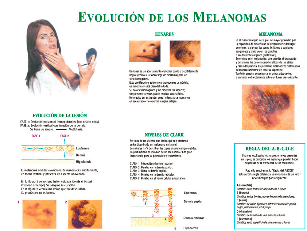 Evolución de los melanomas