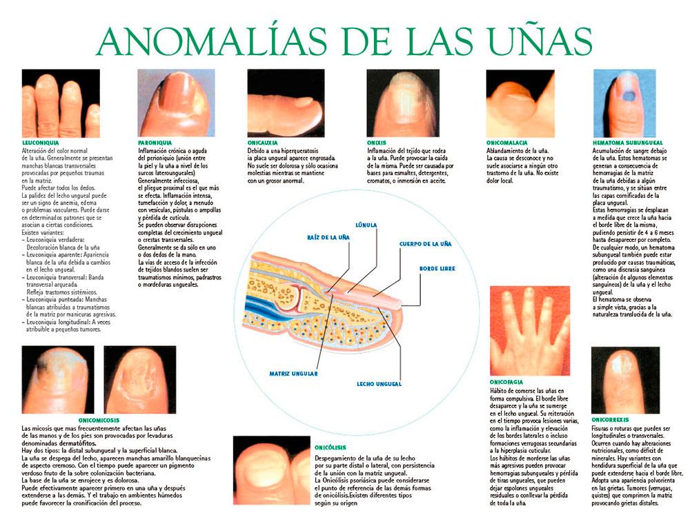 Anomalías de las uñas
